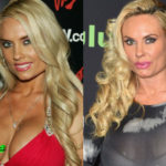 Coco Austin Cosmetic Procedure Before and After