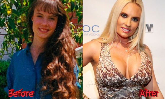 What Do You Think of Coco Austin Plastic Surgery?