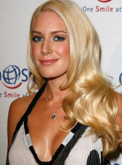 Heidi Montag Plastic Surgery after