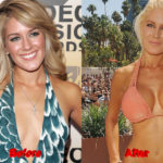Heidi Montag Plastic Surgery before after boobs 150x150