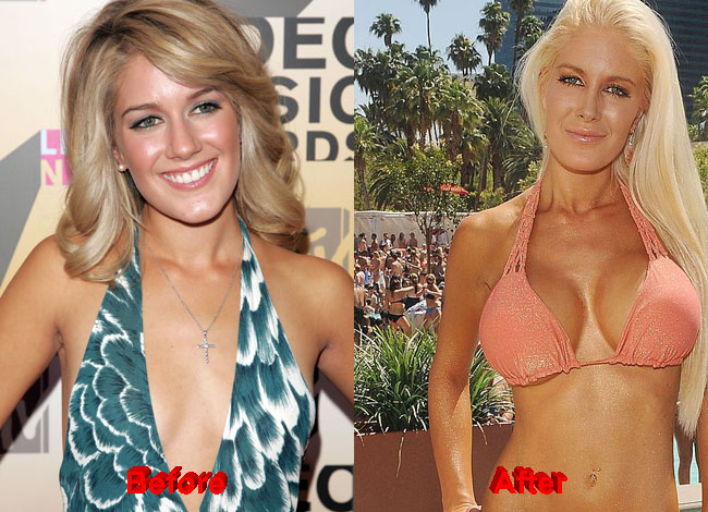 Heidi Montag Plastic Surgery before after boobs