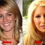 Heidi Montag Plastic Surgery  before after cheeks chin nose