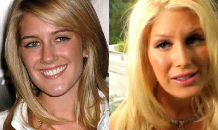 Heidi Montag Admitted Plastic Surgery
