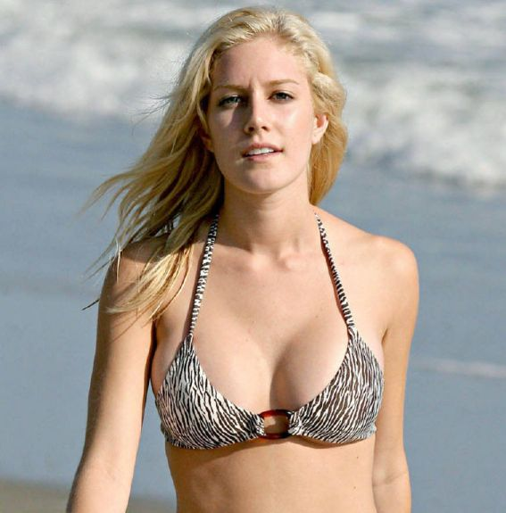 Heidi Montag Plastic Surgery before boobs
