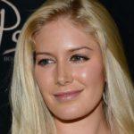 Heidi Montag Plastic Surgery cheeks 150x150