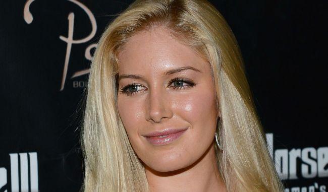 Heidi Montag Plastic Surgery cheeks