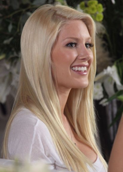 Heidi Montag Plastic Surgery chin