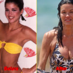 Janice Dickinson Plastic Surgery before after boobs 150x150