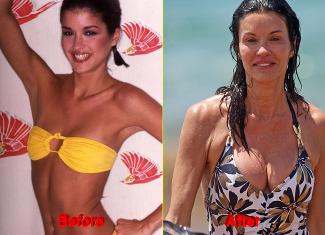 Janice Dickinson Plastic Surgery before after boobs