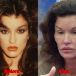 Janice Dickinson Plastic Surgery before after facelift 150x150