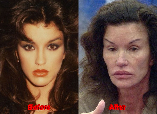 Janice Dickinson Plastic Surgery before after facelift