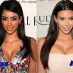 Kim Kardashian Before and After Cosmetic Procedure