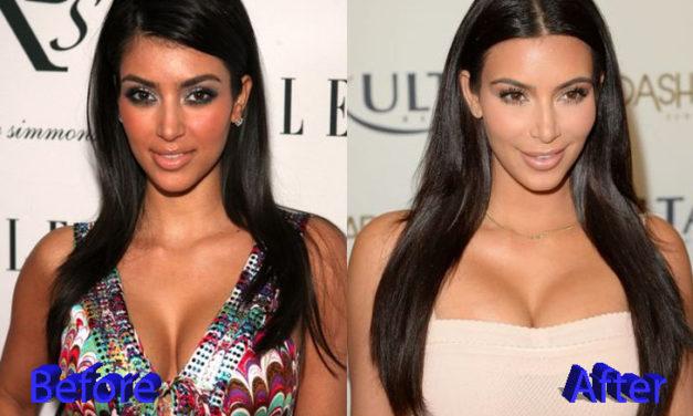 Kim Kardashian Plastic Surgery: Changes Over The Years
