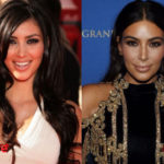 Kim Kardashian Before and After Cosmetic Surgery 150x150