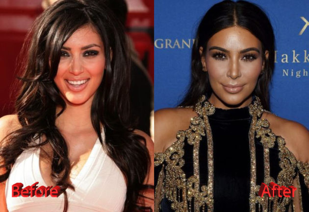 Kim Kardashian Before and After Cosmetic Surgery 630x433