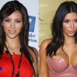 Kim Kardashian Plastic Surgery Before and After 150x150