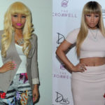 Nicki Minaj Plastic Surgery Before and After 150x150