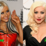Christina Aguilera Before and After Surgery 150x150