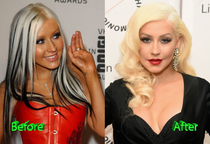 Christina Aguilera Before and After Surgery