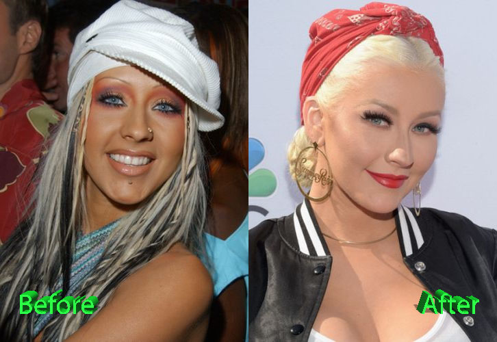 A Take on Christina Aguilera Plastic Surgery