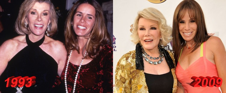 Joan Rivers and Melissa Rivers Plastic Surgery Before and After