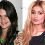 Kylie Jenner Plastic Surgery Before and After