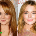 Lindsay Lohan Before and After Cosmetic Surgery 150x150