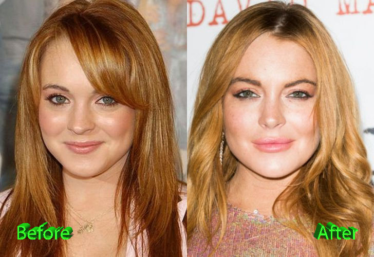 Lindsay Lohan Before and After Cosmetic Surgery