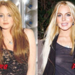 Lindsay Lohan Before and After Surgery Procedure