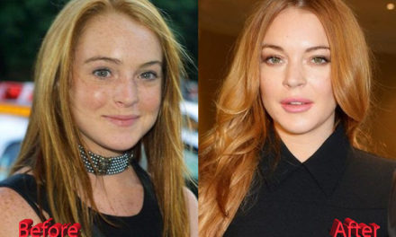 Lindsay Lohan Plastic Surgery: An Improvement?