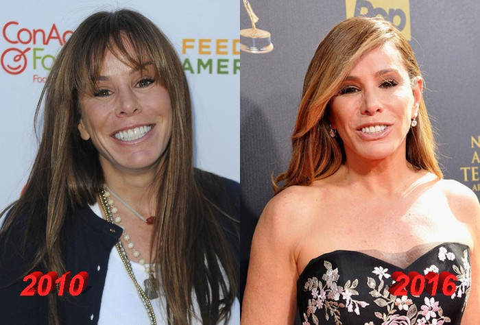 Melissa Rivers After Plastic Surgery