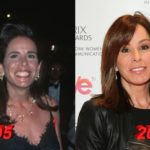 Melissa Rivers Before and After Plastic Surgery 150x150