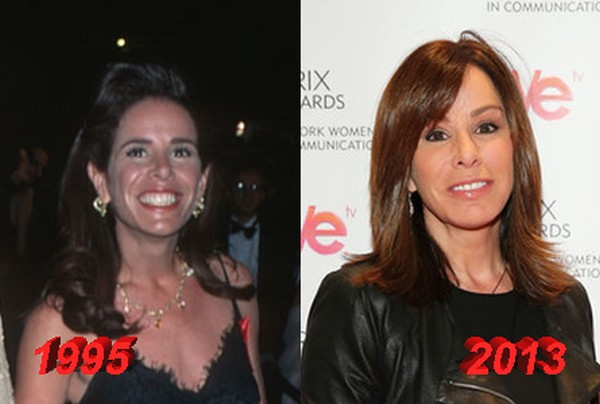 Melissa Rivers Before and After Plastic Surgery