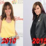 Melissa Rivers Plastic Surgery Gone Wrong