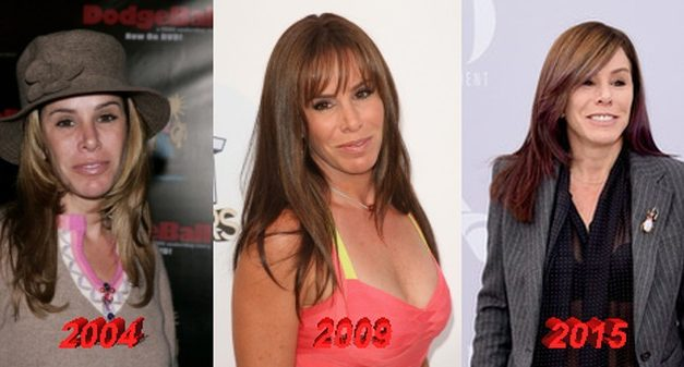 Melissa Rivers Plastic Surgery Addict – Just Like Her Mom