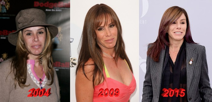 Melissa Rivers Plastic Surgery Transformation
