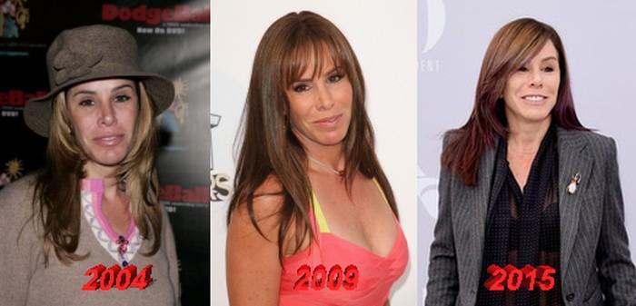 Melissa Rivers Plastic Surgery Transformation