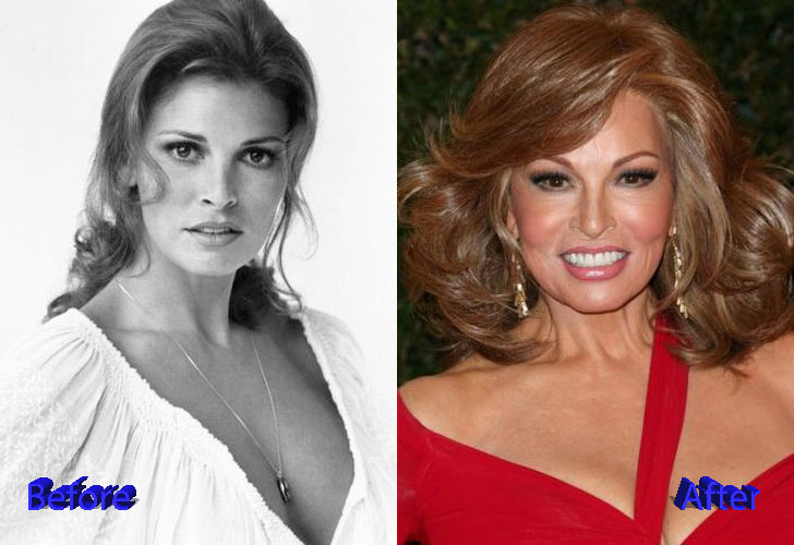 Raquel Welch Before and After Cosmetic Surgery