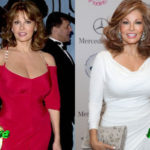 Raquel Welch Before and After Facelift 150x150