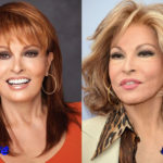Raquel Welch Plastic Surgery Before and After