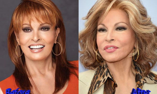 Raquel Welch Plastic Surgery: Just Allegations?