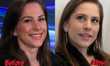 Ana Kasparian Nose Job: Before and After