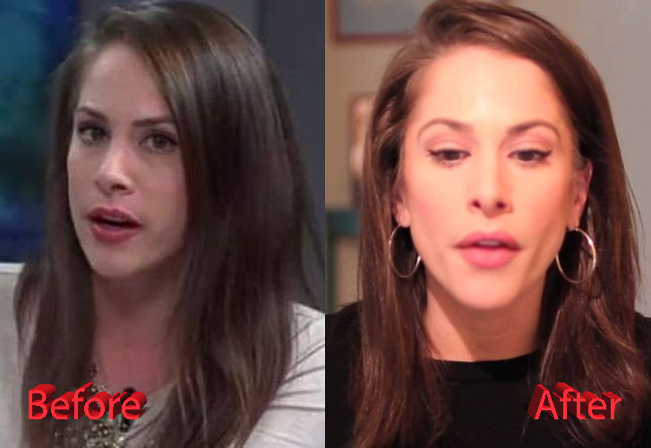 Ana Kasparian Before and After Nose Job