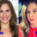 Ana Kasparian Plastic Surgery Before and After