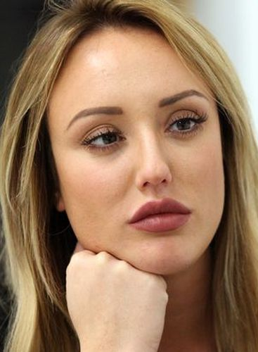 Charlotte Crosby After Nose Job