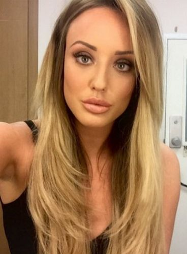 Charlotte Crosby After Nose Surgery