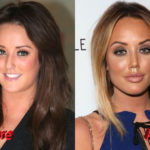 Charlotte Crosby Before and After Nose Job Surgery