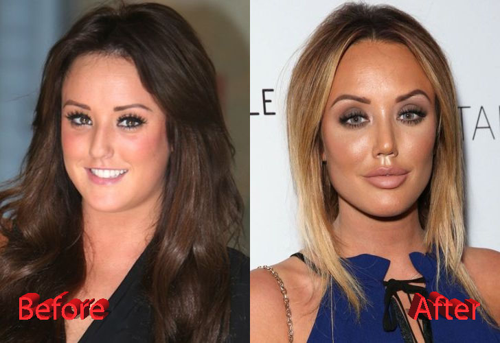 Charlotte Crosby Nose Job: A Transformation