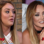 Charlotte Crosby Nose Job Before and After