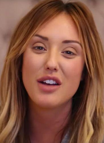 Charlotte Crosby Nose Job Gossips
